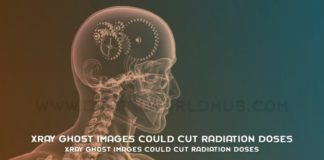 Xray Ghost Images Could Cut Radiation Doses